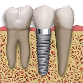 Dental implants Bakersfield, CA