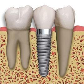 Dental implants Bakersfield, CA SDDS Dental Dr. Navid Safaei