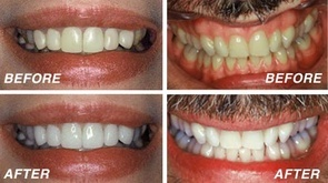Teeth whitening Bakersfield, CA