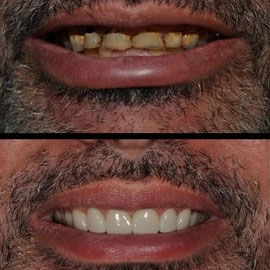 Veneers / Lumineers Bakersfield, CA Dentist
