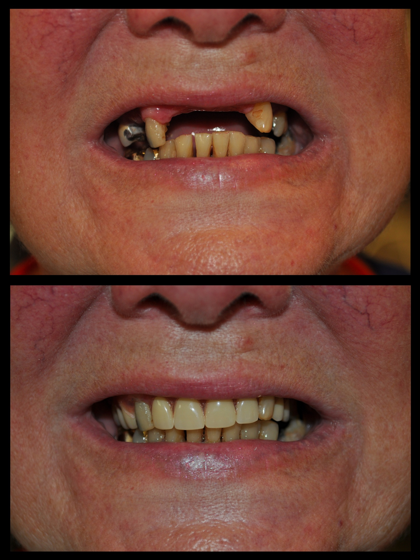 SDDS Dental Before and After
