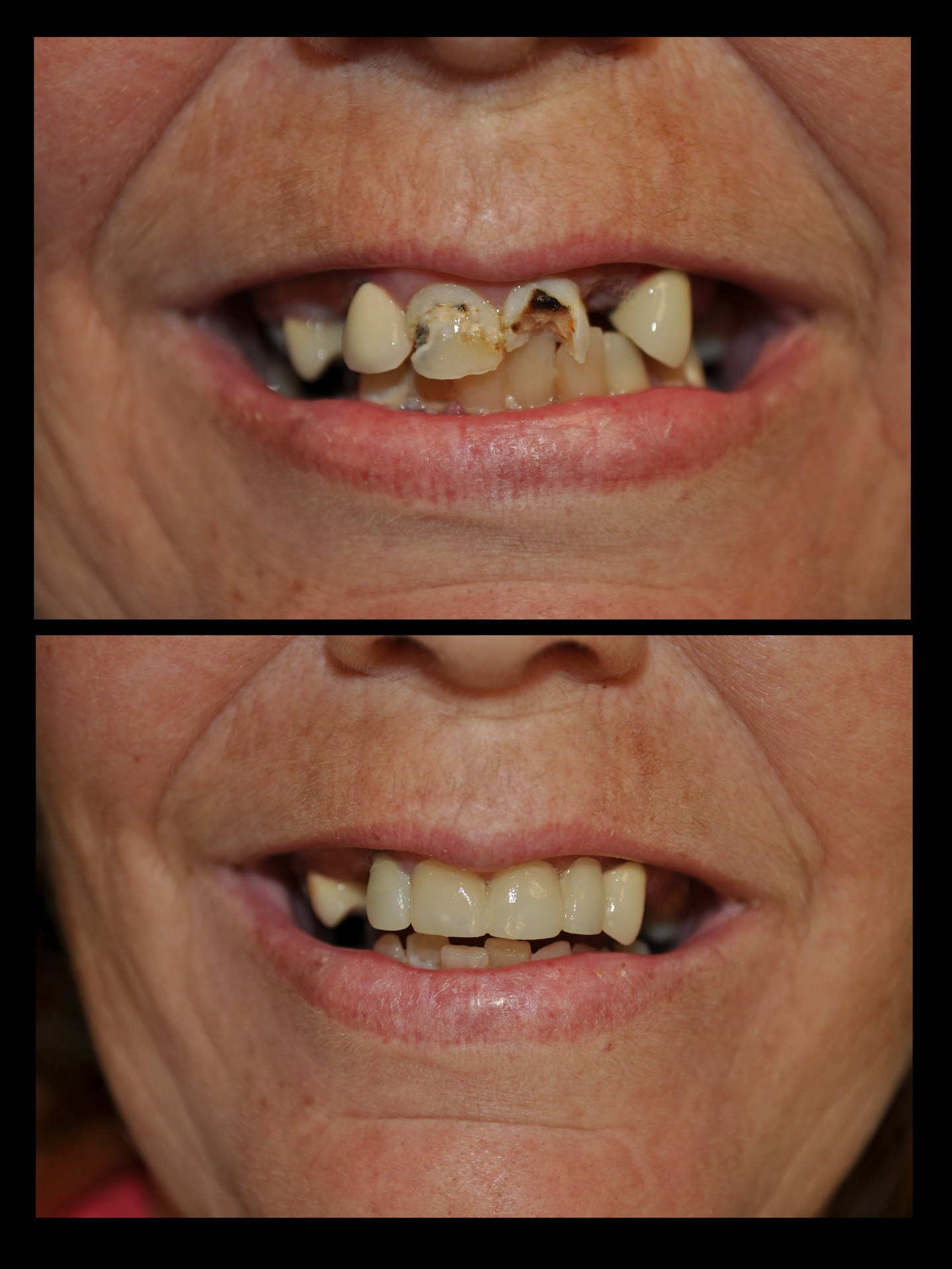 SDDS Dental Before and After 1