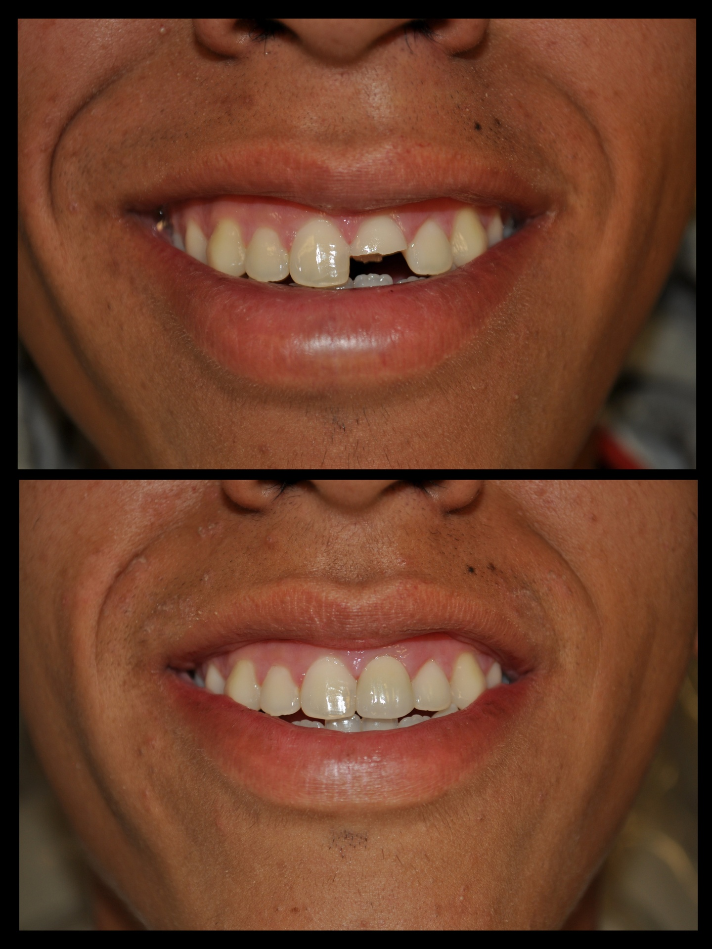 SDDS Dental Before and After 2