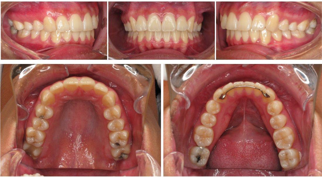 digital dental photography Bakersfield, CA