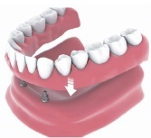 denture implants Bakersfield, CA