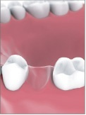 Single Tooth Implant Bakersfield, CA Dentist