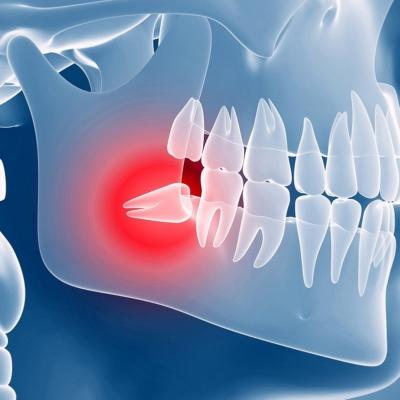 Wisdom Teeth Pain